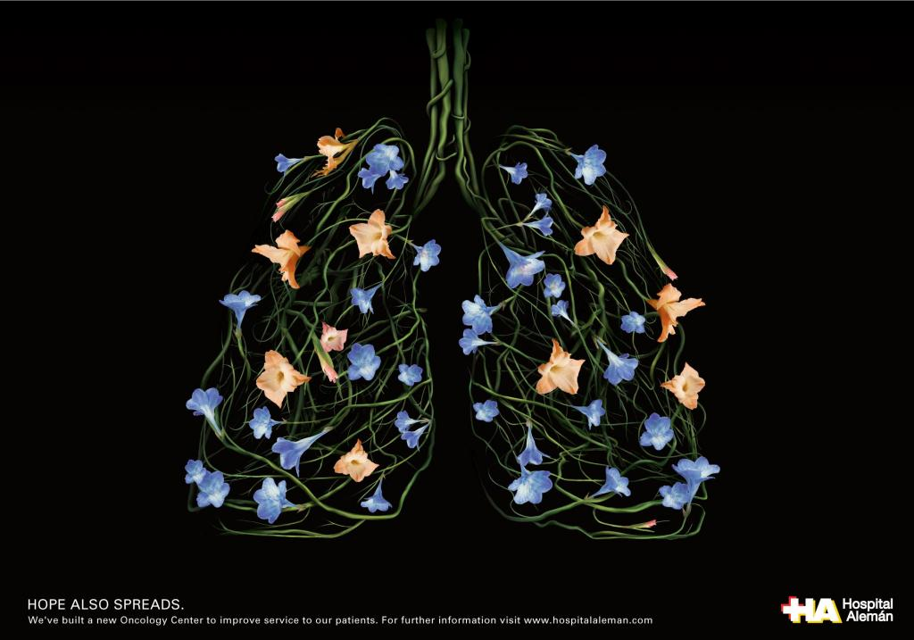 oncology-center-lungs-medium-12560